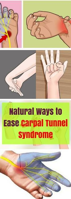 Natural Ways to Ease Carpal Tunnel Syndrome