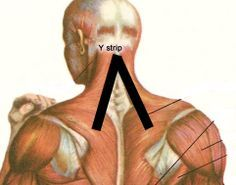 Use Kinesio Tapes to Relieve Neck Pain