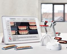 Candulor ToothScout App assists with denture tooth selection in clinic.
