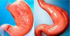 Como Reduzir O Seu Estômago Sem Cirurgia E De Forma 100% Natural! - Leia e Descubra!
