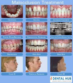Indicators Involving Orthodontic Issues Visual examples that show orthodontic concernsVisual examples that show orthodontic concerns Dental Assistant, Dental Hygiene, Dental Care, Lingual Braces, Crooked Teeth, Oral Surgery, Family Dentistry, First Tooth, Healthy Teeth