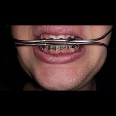 #headgear #headgearbraces Braces Problems, Dental Braces, Headgear, Septum Ring, Beautiful, Instagram, Orthodontics, Places, Teeth Retainer