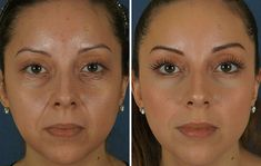 See related links to what you are looking for. Crepy Skin, Egyptian Makeup, Fitness Gym, Anti Aging Skin Care, Glowing Skin, Good Skin, Cellulite, Cream, Beauty