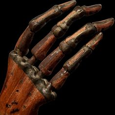 These Vintage Medical Photos Are Both Creepy And Fascinating Medical Photos, Post Mortem, Show Of Hands, Marionette, Vintage Medical, Vintage Nurse, Medical History, Vanitas, Wooden Hand