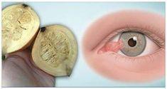 Con esto podrás curar la visión de una vez por todas… Deshazte de los lentes ya - Guru en Salud
