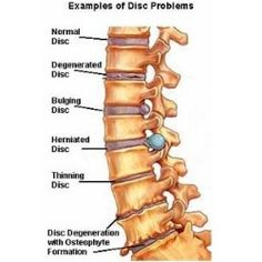5 Most Common Spinal Stenosis Symptoms