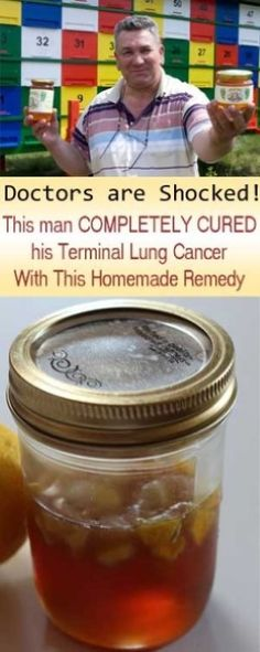 honey and ginger for cancer Doctors Are Speechless: Man Completely Cures His Terminal Lung Cancer With This Natural Remedy Natural Cancer Cures, Natural Home Remedies, Natural Healing, Natural Oil, Natural Honey, Holistic Healing, Natural Beauty, Cancer Fighting Foods, Natural Treatments
