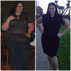 Dating after gastric sleeve