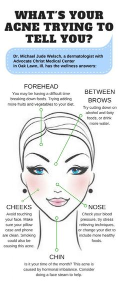 Check out this face map to see why you might keep breaking out in the same spot.#acne#