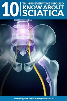 Sciatica is a common lower back issue that affects people all over the world. Since lower back pain is one of the top causes of disability, understanding this condition is important. Here are 10 things that everyone should know about sciatica. How To Relieve Sciatica, Sciatica Symptoms, Sciatica Exercises, Back Pain Exercises, Sciatica Massage, Disease Symptoms, Autoimmune Disease, Sciatic Nerve Relief