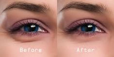 Under-Eye Dark Circle Home Remedies For Fast Results - NatuRelieved Reduce Dark Circles, Dark Circles Under Eyes, Eye Circles, Anti Aging, Dark Circle Remedies, How To Use Makeup, Beauty Hacks For Teens, Do It Yourself Fashion, Under Eye Bags