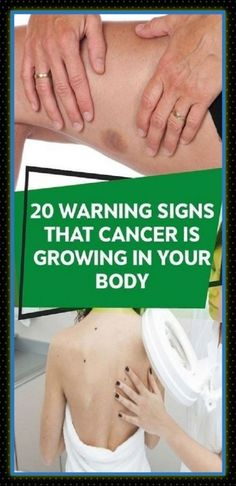 #recognize #cancer #signs #health #early #prevention Abdominal Bloating, Abdominal Pain, Signs Of Lung Cancer, Transvaginal Ultrasound, Swollen Lymph Nodes, Squamous Cell Carcinoma, Feeling Exhausted, Lymphatic System, Warning Signs
