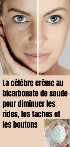 La célèbre crème au bicarbonate de soude pour diminuer les rides, les taches et les boutons - Beauty Care, Beauty Hacks, Mascara Hacks, How To Grow Eyebrows, Skin Tag Removal, Les Rides, Beauty Tips For Face, Face Tips, Younger Looking Skin