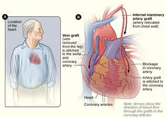 Figure A shows the location of the heart. Figure B shows how vein and artery bypass grafts are attached to the heart.