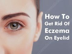Best Ointment For Eczema. Itchy skin and eczema medication. On the list of various chronic skin disorders, eczema is among the most frequent. Eye Eczema, Severe Eczema, Eczema Symptoms, Treat Eczema, Eczema On Eyelids, Eczema Remedies, Skin Care Remedies, Natural Remedies