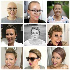 Super hair growth timeline to get ideas Hair Growth After Chemo, Chemo Hair Loss, New Hair Growth, Hair Regrowth Shampoo, Natural Hair Regrowth, Hair System, Grow Long Hair, Super Hair, Hair Loss Treatment
