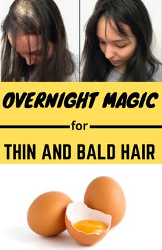 Super-effective egg yolk remedies to stimulate hair growth naturally at home Super-effective egg yolk remedies to stimulate hair growth naturally at home pinxoxo HairCare Super-Effective Egg Yolk Remedies To Stimulate nbsp hellip Bald Hair Growth, Hair Mask For Growth, Hair Growth Shampoo, Hair Remedies For Growth, Hair Growth Treatment, Natural Hair Tips, Natural Hair Growth, Mens Hairstyles Thin Hair, Hairstyles 2016