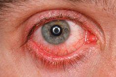 Turmeric Treats Uveitis Eye Disorder Naturally