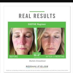 Do you have red, irritated skin? Let SOOTHE help you out!
