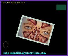 Sinus And Throat Infection 140822 - Cure Sinusitis