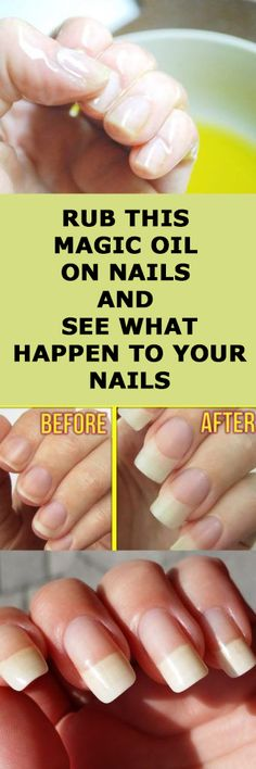 Best Home Remedies For Nails Growth And Hardening