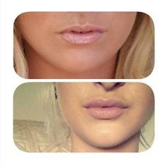 Hopefully my results would be something like this please. Dermal Fillers Lips, Facial Fillers, Botox Fillers, Lip Fillers, Pink Eye Makeup, Kiss Makeup, Hair Makeup, Botox Lips, Lip Augmentation