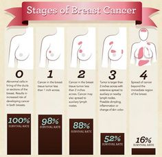 This infographic shows you the stages of breast cancer. Early detection is key to successful treatment!