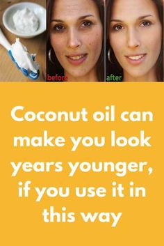 Coconut oil can make you look years younger, if you use it in this way Skin experts say that using Coconut oil can bring the youth back. Your skin health depends on the products you are using. Many brands are present on the market, and you probably have y Natural Hair Mask, Natural Hair Styles, Natural Beauty, Les Rides, Skin Tag, Look Younger, Younger Skin, Younger Looking Skin, Face Wash
