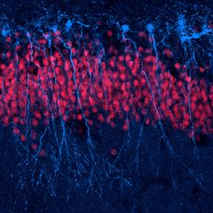 "Stained dendrites by ""Functional Neurogenesis""  (Jason Snyder)"