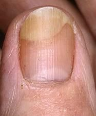 Did you know that your fingernails can provide clues to your overall health? Normal, healthy nails should appear smooth and have consistent coloring, but as you age, you may develop vertical ridges, or your nails may be a bit more brittle. Nail Health Signs, Bad Nails, Nutrition, Vitamin B12, Healthy Nails, Danger, Vitamins, Eat, Food