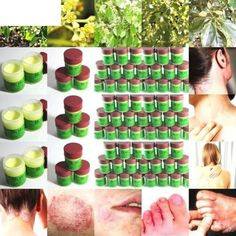Skincare products for eczema Cure Psoriasis Ointment Ringworm Cream Tinea Eczema Treatment All S Types Of Psoriasis, What Is Psoriasis, Psoriasis On Face, Plaque Psoriasis, Psoriasis Remedies, Essential Oils For Psoriasis