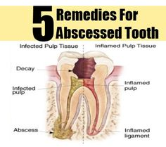 5 Abscessed Tooth Herbal Remedies, Natural Treatments And Cures Natural Treatments, Natural Cures, Tooth Abcess Remedy, Herbal Remedies, Home Remedies, Dental Reconstruction, Sore Tooth, Abscess Tooth, Remedies For Tooth Ache