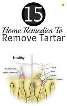 15 Amazing Home Remedies To Remove Tartar : Brushing teeth every day, proper flossing, oral hygiene, regular dental checkups are important to maintain good oral health. Neglecting any of these can really create a havoc on teeth and gums. #OralHygiene #removingtartarfromteethathome