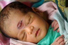 Japan: Infant Born With Third Eye Fuels Public Outcry Over Fukushima Disaster Health Hazard - See more at: http://worldnewsdailyreport.com/japan-infant-born-with-third-eye-fuels-public-outcry-over-fukushima-disaster-health-hazard/#sthash.12OhoGT9.dpuf