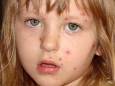 Remedies for Chicken Pox    Chicken Pox Treatment Using Brown Vinegar    The use of brown vinegar is one of the most important among the several home remedies found beneficial in the treatment of chicken pox. Half a cup of this vinegar should be added to a bath of warm water. This will relieve the irritation of the skin.  Chicken Pox Treatment Usin