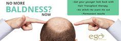 #Hair #Transplantation at Rs. 35/- per follicle at ego wellness.