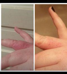 Stretch mark cream for eczema! $39 loyal customer!!! Alimanning.myitworks.com
