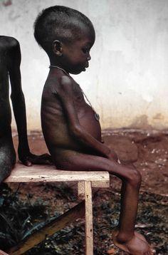bambini morti per fame