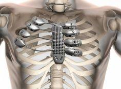 Krebs-Patient erhält Titanium-Brustkorb aus dem 3D-Drucker