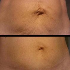 Some people are using Nerium on stretch marks and other skin issues and having fantastic results.  http://lisacraig.arealbreakthrough.com