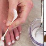 4 remédios caseiros para remover fungos das unhas