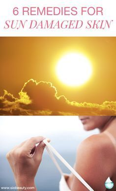 Best remedies for sun damaged skin. Wrinkles and age spots are just two of the many negative marks that the sun can leave on your skin even after it sets. And, unfortunately, your face and décolleté are oftentimes the first places this damage begins to show. #sunburn #damagedskin #skincare #antiagingtips #tanlines