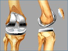 A visit to the best of Sydney Orthopedic Specialists will help to determine the root cause of the knee pain.