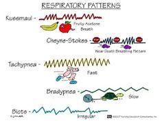 Respiratory Patterns - Nursing Mnemonics. See more: http://www.nursebuff.com/2014/06/nursing-mnemonics/