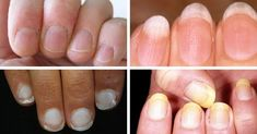 Fingernails and disease don't go together in most minds… but they should. Your fingernails can give you valuable health warnings and signal the presence of serious disease. Take a good long look at your nails. Hip Bursitis Exercises, Nail Conditions, Medical Conditions, Ate Too Much, Types Of Cancers, Runny Nose, Types Of Nails, Detox Drinks, White Nails