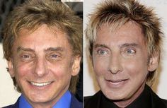 Top 10 Celebrity Plastic Surgery Gone Wrong – Complete Disaster