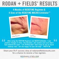 Rodan + Fields Redefine regimen and Macro Exfoliator use.