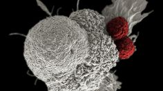 FDA approves genetically engineered T cells for the treatment of acute lymphoblastic leukemia. T cells are devised to carry the chimeric antigen receptor (CAR) that recognizes tumor antigens which are specific for each patient (Sciencemag, 2017)