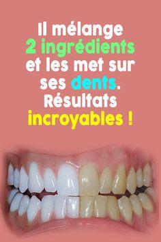 On dit souvent que la dentition d'une personne est le miroir qui reflète sa beauté. Ceci est vrai quand une personne manifeste un très beau sourire avec des dents blanches et brillants, mais quand ils sont jaunis et tachées, ils deviennent répugnants ! Dans cet article, découvrez une formule naturelle pour faire briller vos dents... Bigger Hips Workout, Teeth Whitening Remedies, 2 Ingredients, Meal Planning, Beauty Hacks, Health, Nelson Mandela, Vaseline, Articles