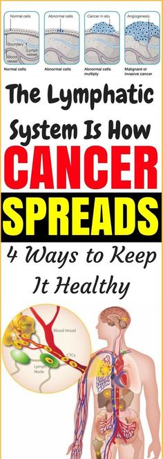 The Lymphatic System Is How Cancer Spreads: 4 Ways To Keep It Healthy!!! - Way to Steal Healthy
